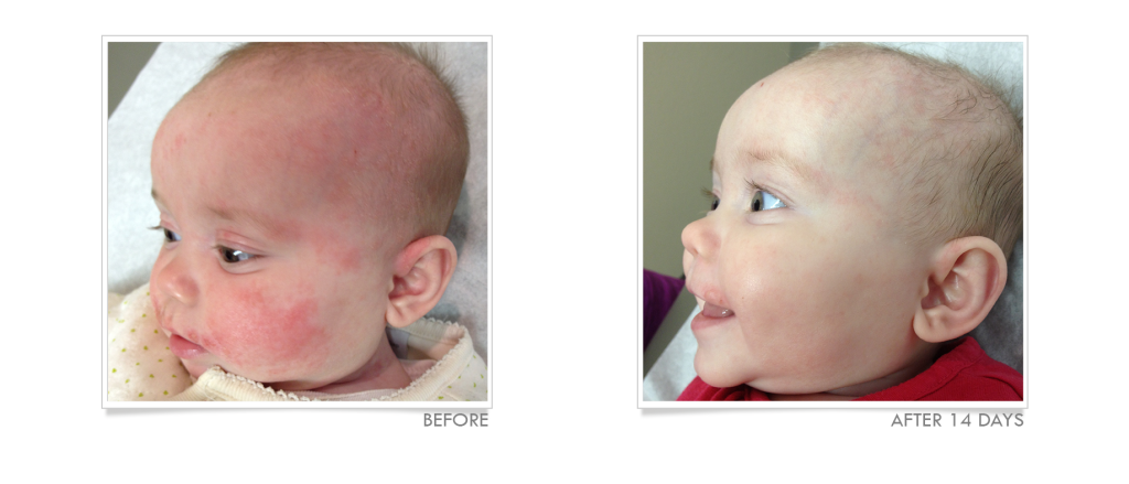 7 Tips To Soothe Baby Eczema
