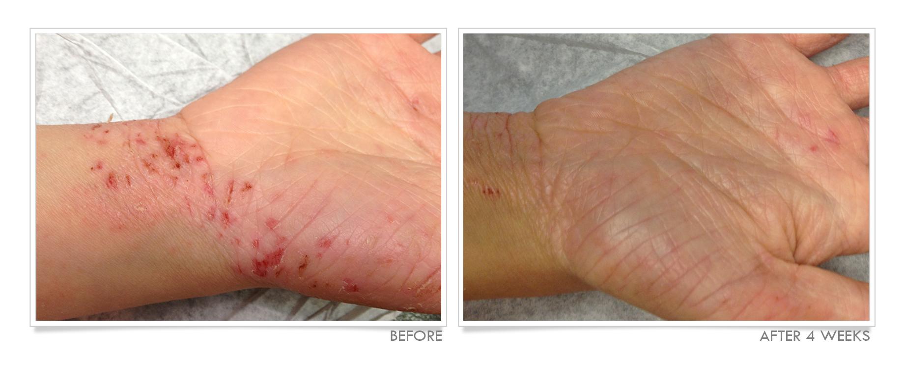 Bleach Baths for Eczema Treatment